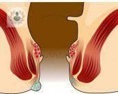 hemorroides-externas
