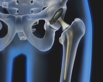 alternativas-a-protesis-de-cadera