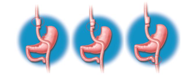 cirugia-de-la-obesidad-la-mejor-alternativa-para-bajar-de-peso imágen de artículo