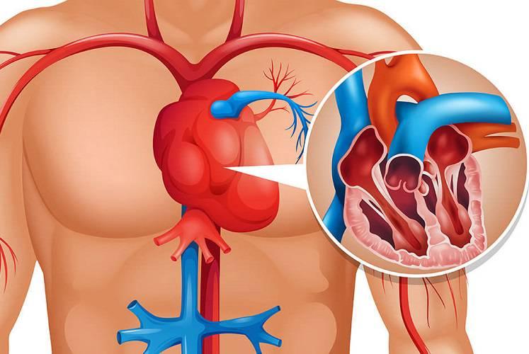 principales-sintomas-que-se-manifiestan-antes-de-sufrir-un-infarto imágen de artículo
