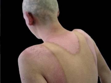 partes-afectadas-por-el-lupus imágen de artículo