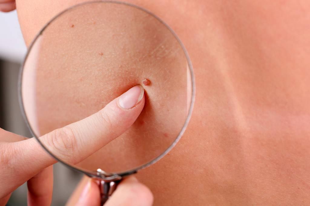 cancer-de-piel-por-exposicion-al-sol imágen de artículo