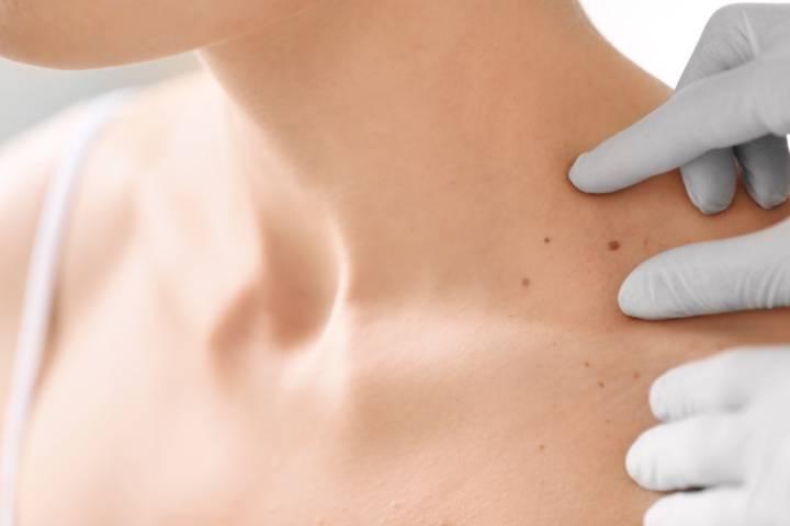 los-lunares-son-un-riesgo-para-el-melanoma imágen de artículo