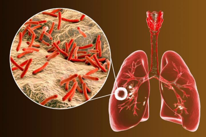 dia-mundial-de-la-tuberculosis imágen de artículo