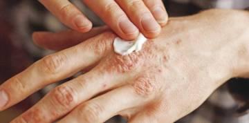 alteraciones-en-la-piel-por-coronavirus imágen de artículo