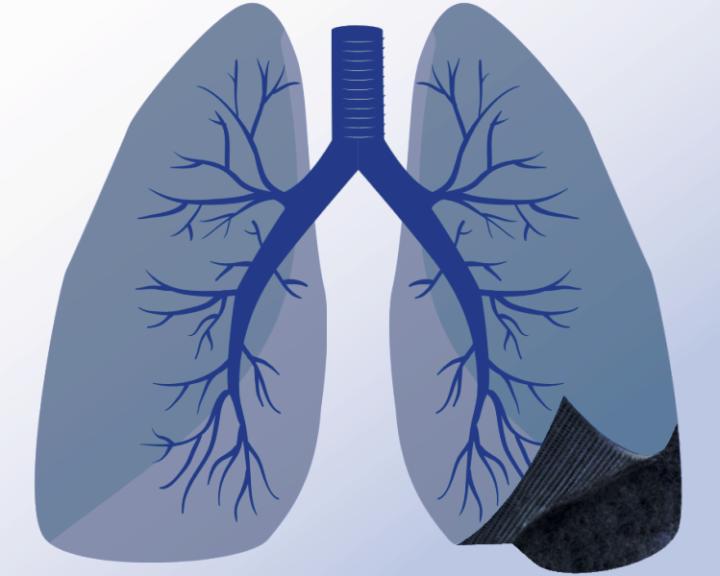 enque-consiste-la-fibrosis-pulmonar imágen de artículo
