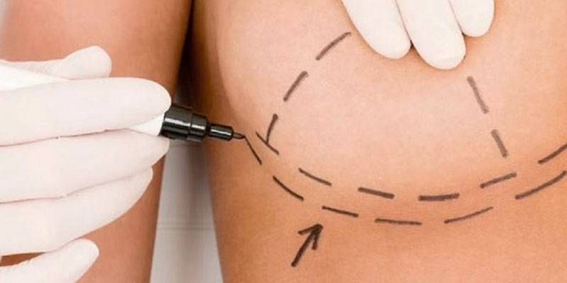 lipotransferencia-de-proteccion-con-implantes-irradiados imágen de artículo