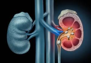 litiasis-renal-y-de-las-vias-urinarias-en-pediatria imágen de artículo