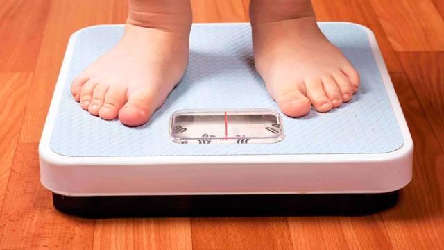 sobrepeso-y-obesidad-en-chile imágen de artículo