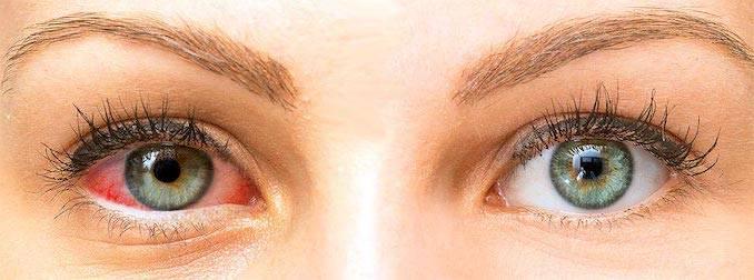 enfermedad-de-ojo-seco-sintomas-tratamiento-y-complicaciones imágen de artículo