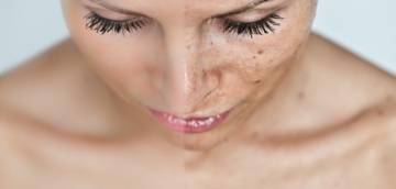 hiperpigmentacion-como-se-trata imágen de artículo