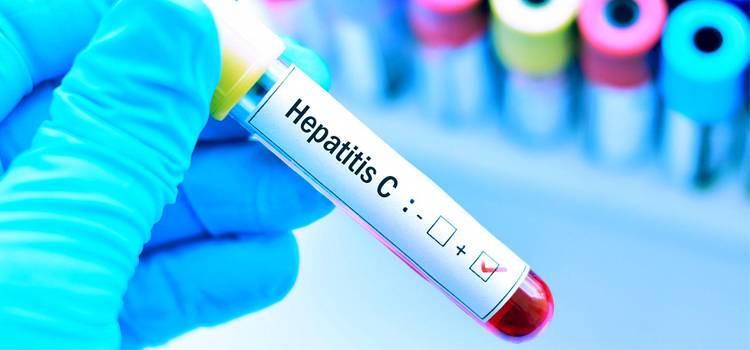 hepatitis-c-las-consencuencias-de-una-enfermedad-silenciosa imágen de artículo