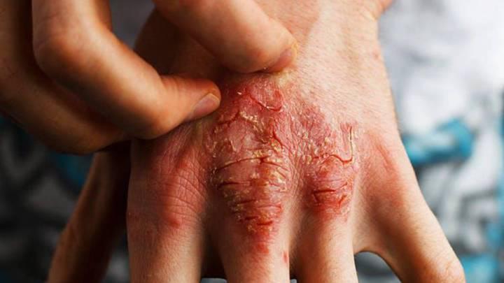 enrojecimiento-de-la-piel-y-picazon imágen de artículo