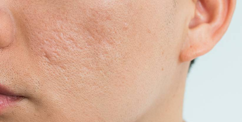 por-que-quedan-cicatrices-de-acne-y-como-eliminarlas imágen de artículo