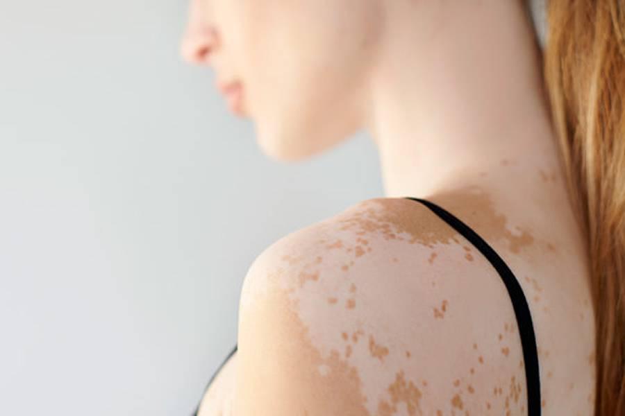 trastorno-de-la-piel-irreversible imágen de artículo