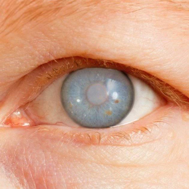 glaucoma-de-angulo-abierto-y-sus-posibles-causas imágen de artículo