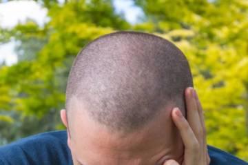una-solucion-efectiva-para-aquellos-que-estan-perdiendo-el-pelo imágen de artículo
