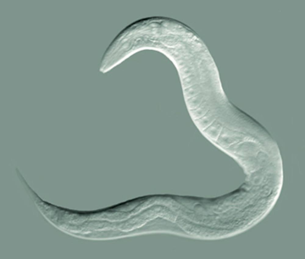 c-elegans-por-que-este-gusano-es-tan-util-para-la-ciencia-y-la-medicina imágen de artículo