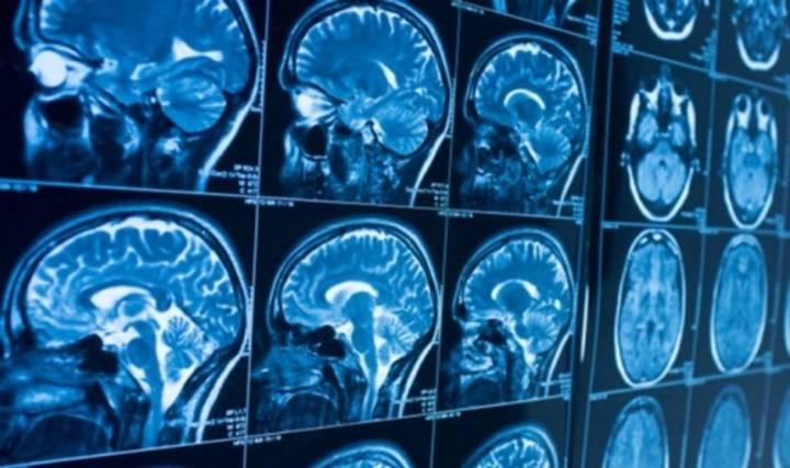 uno-de-cada-tres-recuperados-de-covid-19-tiene-problemas-en-el-sistema-nervioso imágen de artículo