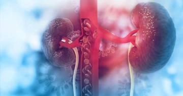 covid-19-puede-infectar-a-los-rinones-cuales-son-sus-efectos imágen de artículo