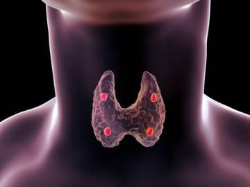 cancer-de-tiroides-causas-sintomas-y-tratamiento imágen de artículo