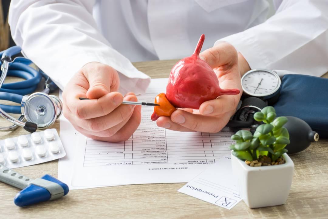 cancer-de-prostata-factores-de-riesgo-y-prevencion imágen de artículo