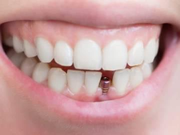 implantes-dentales-sin-dolor imágen de artículo
