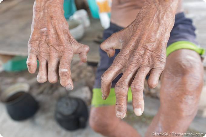 lepra-en-la-region-de-la-araucania imágen de artículo