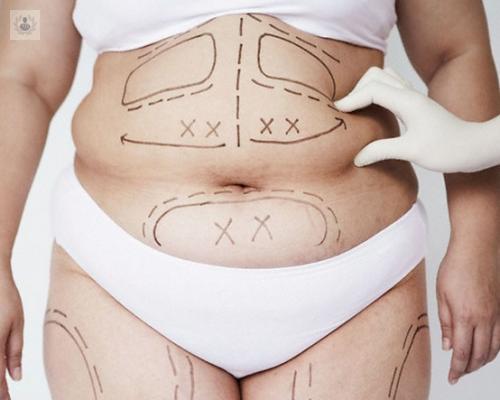 cirugia-de-la-obesidad-por-laparoscopia