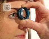 glaucoma-congenito