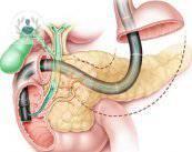 cancer-de-vias-biliares