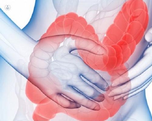 sindrome-de-intestino-irritable-articulo