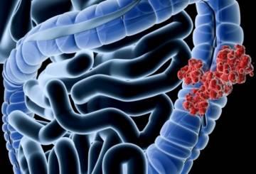 cancer de colon sintomas