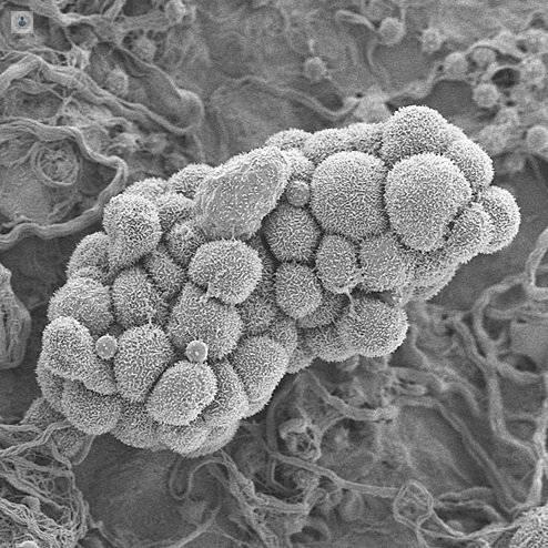 sintomas de cancer de ovario
