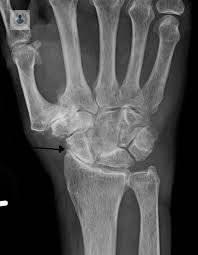 que es osteoporosis