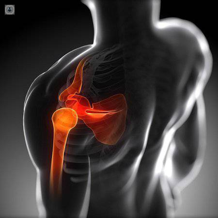 lesiones del hombro